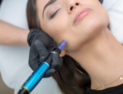 5 Reasons to Choose an Aesthetic Physician for Your Injections